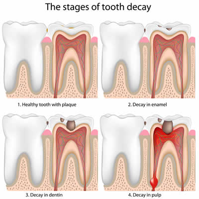 Gradual Tooth Decay